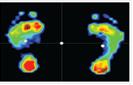足底压力和平衡功能分析仪