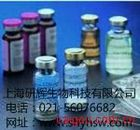 人二肽基肽酶Ⅳ(DPPⅣ)ELISA试剂盒