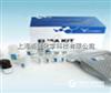 人過敏原抗體(IgE)ELISA kit