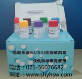 人EJ抗体/抗甘氨酰tRNA合成酶抗体(EJ/GlyRS)ELISA Kit