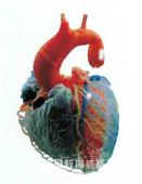 心的血管(动脉、静脉)*医用*铸型标本*人体解剖标本/管道标本