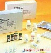 人MV IgG,麻疹病毒IgGElisa试剂盒