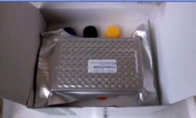 人鳞状细胞癌相关抗原(SCCAg)ELISA Kit=Human squamous cell carcinoma related antigen,SCCAg ELISA Kit
