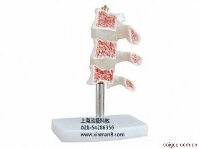 脊椎典型病变模型 骨质疏松症模型
