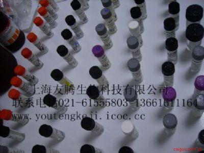 人P27蛋白(P27)ELISA Kit