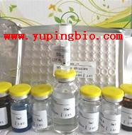 人抗硬皮病抗体70(anti-SCL70)ELISA试剂盒