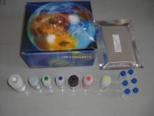 人抗双链DNA抗体/天然DNA抗体(dsDNA)ELISA试剂盒
