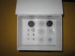 细胞角蛋白21-1片段ELISA试剂盒厂家代测,进口人(CYFRA21-1)ELISA Kit说明书