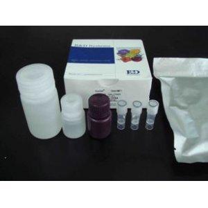 人尿游离皮质醇(UFC)ELISA试剂盒
