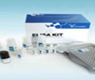 人胰蛋白酶(trypsin)ELISA Kit