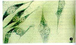 美国ATCC Y79 人视网膜母细胞株