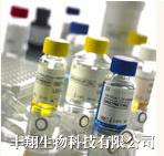 磷酸化乙酰辅酶A羧化酶(pACCase)ELISA