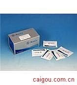 人EBv IgA,EB病毒IgAElisa试剂盒