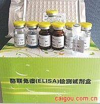 合胞病毒IgM ELISA试剂盒
