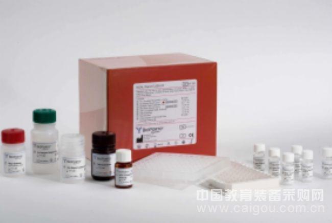 人髓系细胞触发受体-1检测范围(TREM-1)ELISA试剂盒最便宜价
