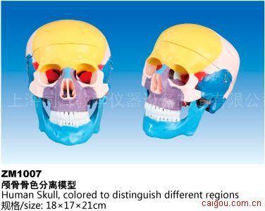 颅骨骨色分离模型