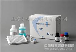 北京Sam人可溶性粘附分子ELISA试剂盒代测