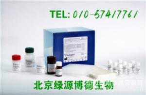 人硫酸软骨素 Elisa kit价格,CS进口试剂盒说明书